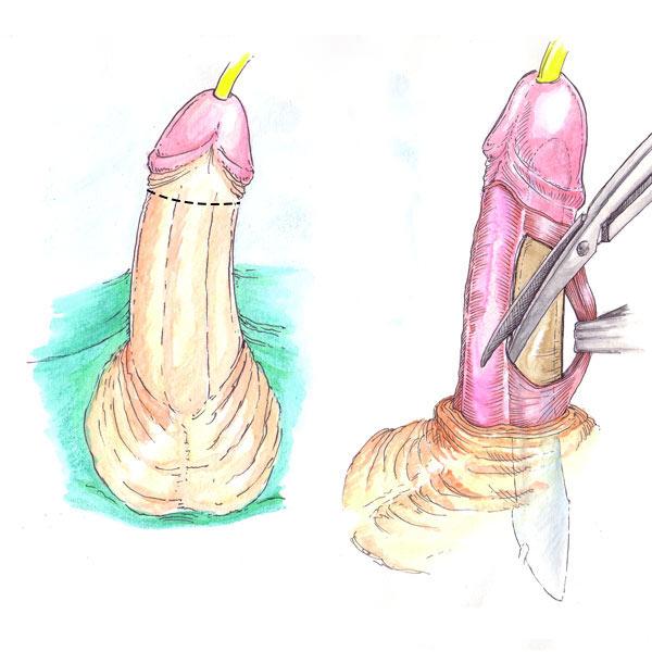 Prótesis de pene